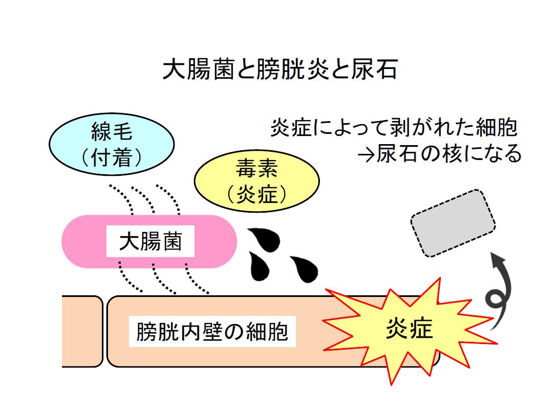 大腸菌と膀胱炎と尿石の関係性は炎症によって剥がれた細胞が尿石の核になる事が図からわかる