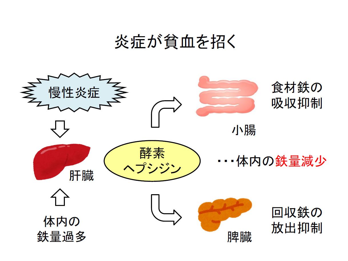 慢性 炎症 貧血